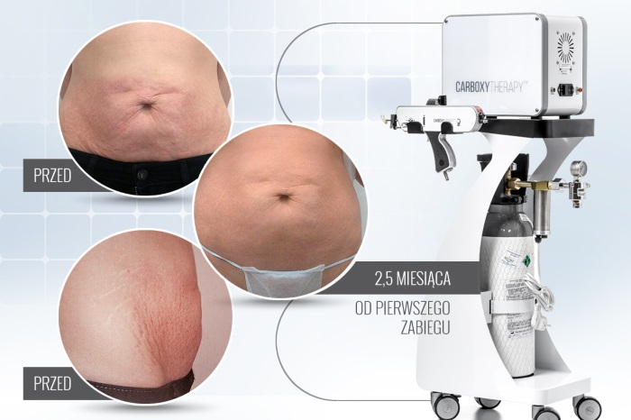 Karboksyterapia Carboxytherapy Dual MC2™ - Atelier Urody Diamond Beauty Spa - Wrocław
