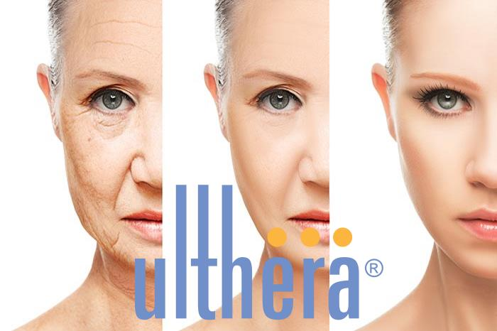 Ulthera HiFu - Atelier Urody Diamond Beauty Spa - Wrocław